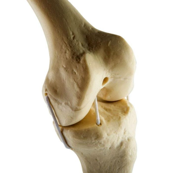 1019621, ORTHO bones Standard Knie, links