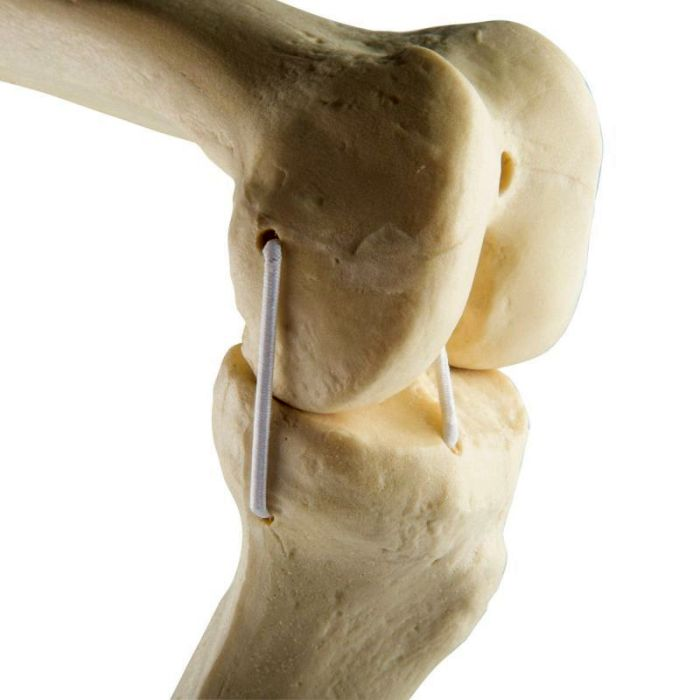 1019621, ORTHO bones Standard Knee left