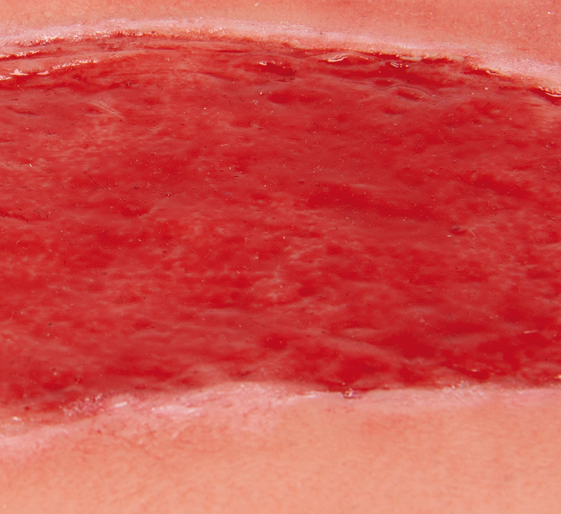 Wound moulage arterial leg ulcer, large, granulation phase